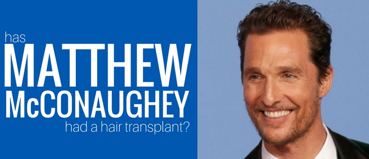 Has Matthew McConaughey had a hair transplant?