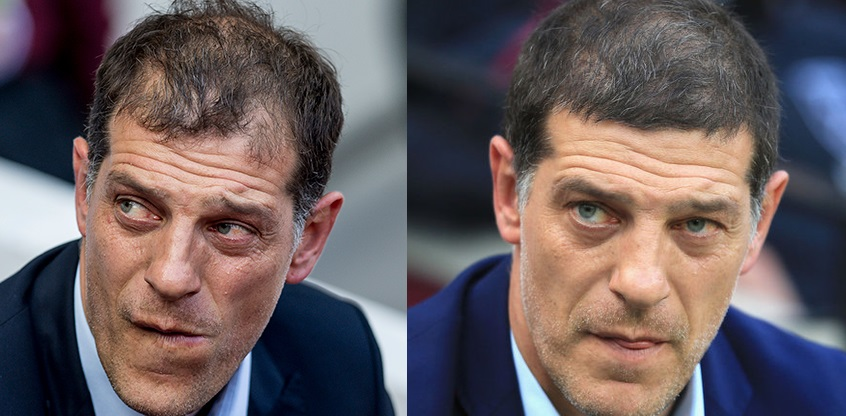 Slaven Bilic hair transplant before and after
