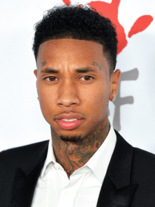 Tyga after hair transplant