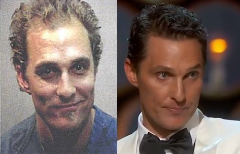 Matthew McConaughey hair transplant before and after (1)