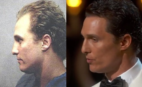 Matthew McConaughey hair transplant before and after (2)