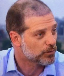 Slaven Bilic shortly after hair transplant surgery