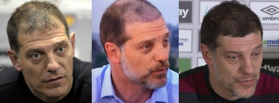 Slaven Bilic hair transplant progress