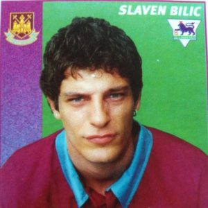 Slaven Bilic hair before transplant