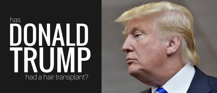 Donald Trump hair transplant