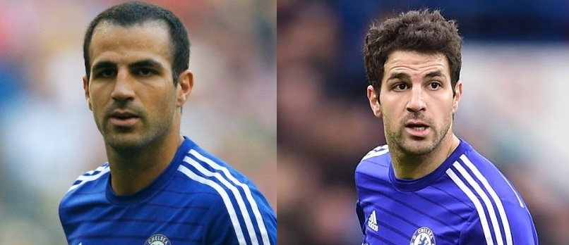Cesc Fabregas before and after hair transplant