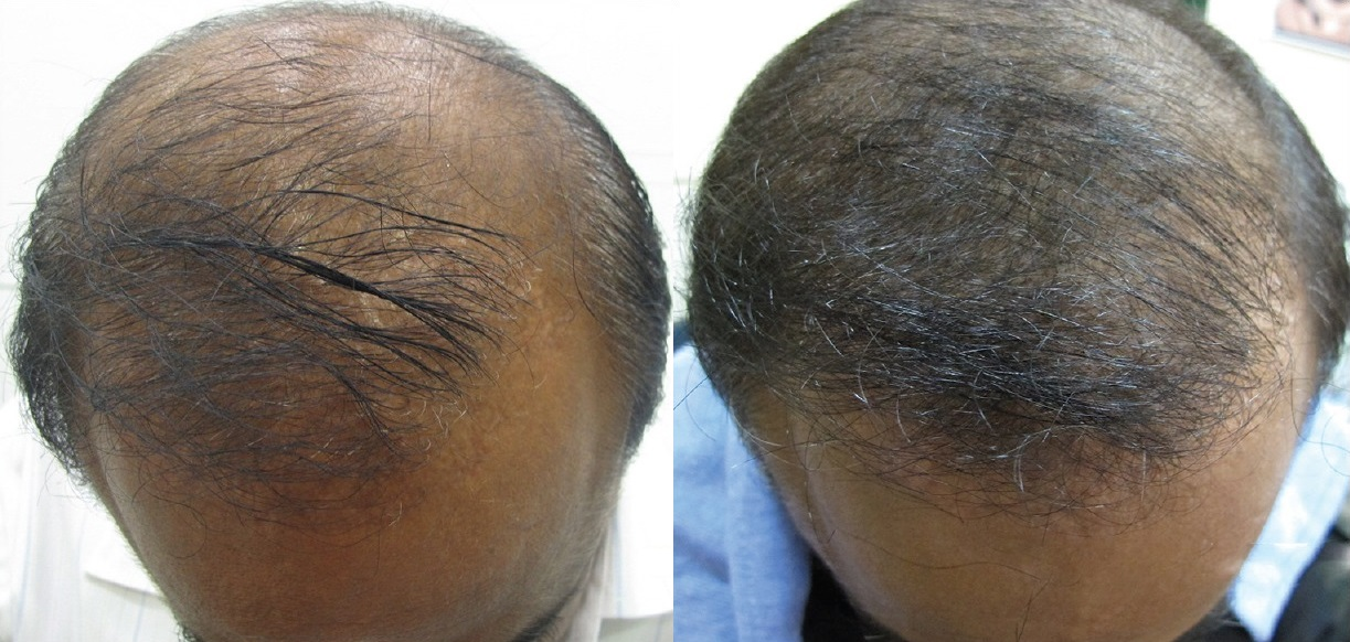 derma roller hair regrowth results