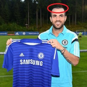 Cesc Fabregas hair loss (Chelsea)