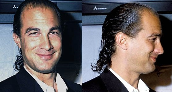 Steven Seagal Hair Loss