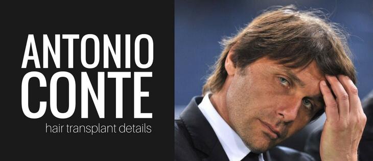 Antonio Conte hair transplant