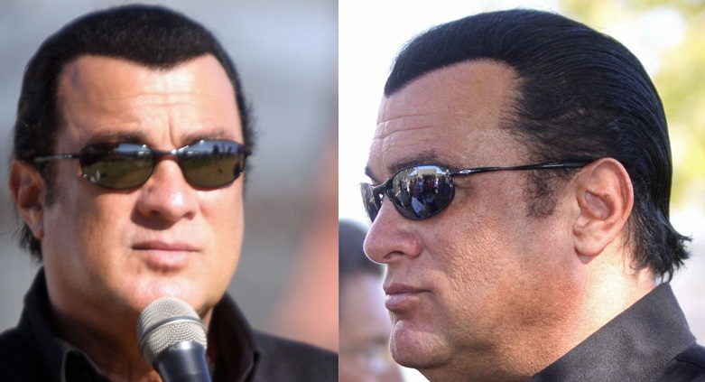 Steven Seagal Crazy Hair Loss Concealer