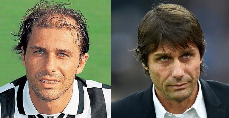 Antonio Conte before and after hair transplant