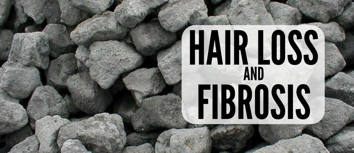 pattern hair loss fibrosis