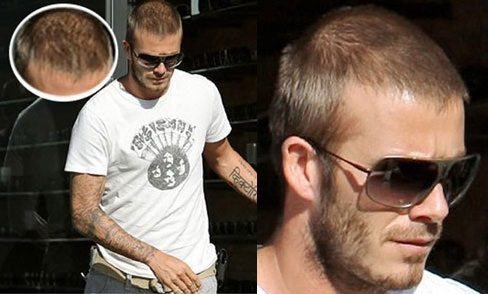 David Beckham hair loss and balding?