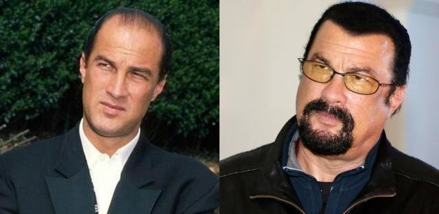 Steven Seagal Hair Before and After
