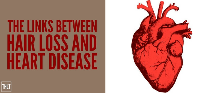 Links between hair loss and heart disease