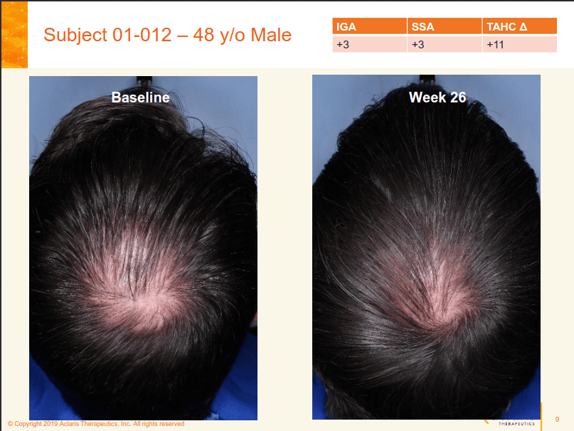 Aclaris JAK inhibitor (ATI-502) hair loss results