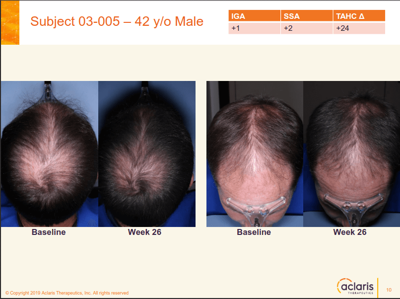 Aclaris JAK inhibitor (ATI-502) hair loss results 2