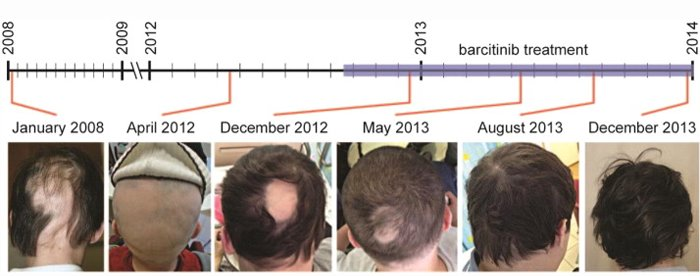 Baricitinib JAK inhibitor hair loss results