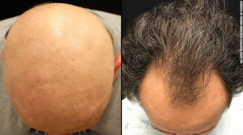 JAK inhibitors hair loss reversal - not complete