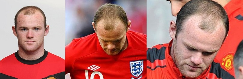 Wayne Rooney hair loss at Manchester United