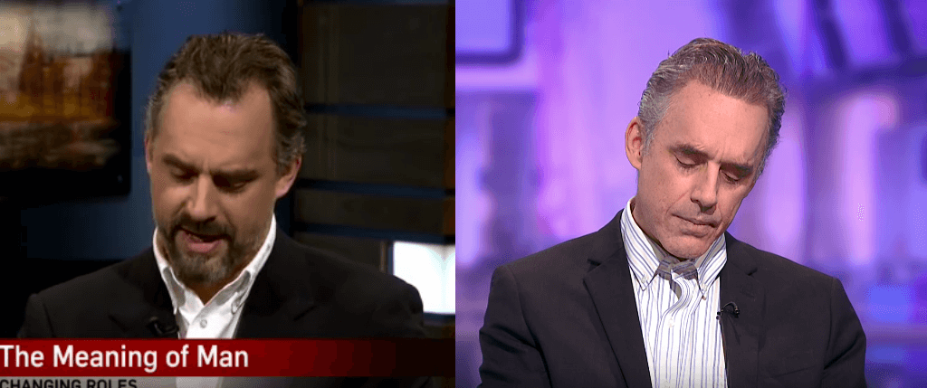 Jordan Peterson Hair Transplant before and after