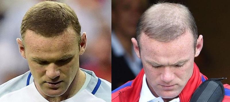 Wayne Rooney hair loss concealer