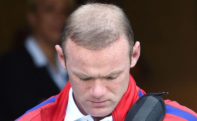 Wayne Rooney hair transplant falling out