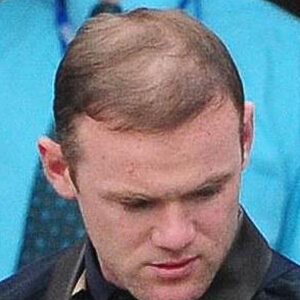 Wayne Rooney thin hair after hair transplant