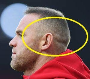 Wayne Rooney FUE hair transplant scars