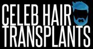 Celeb Hair Transplants