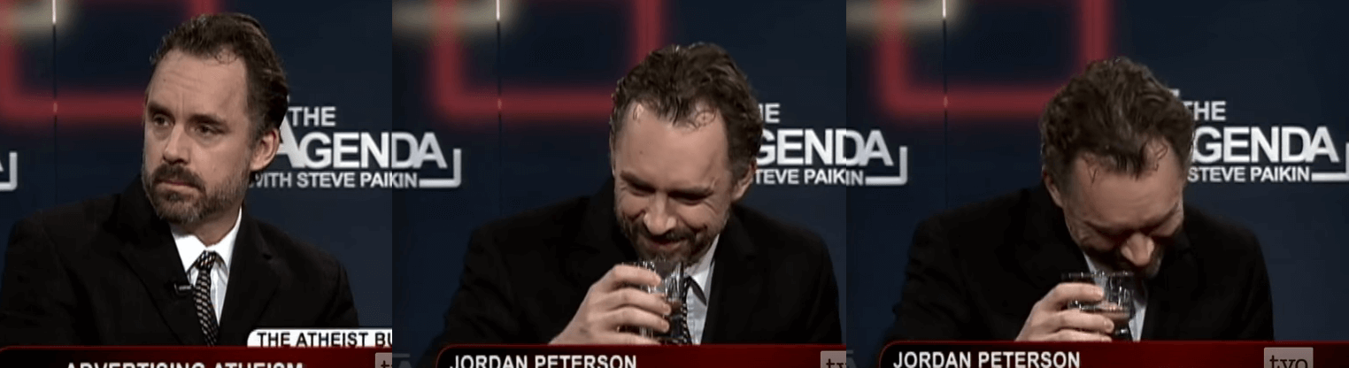 Jordan Peterson Hair Transplant (Before)