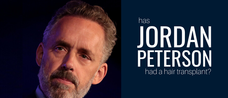 Jordan Peterson Hair Transplant