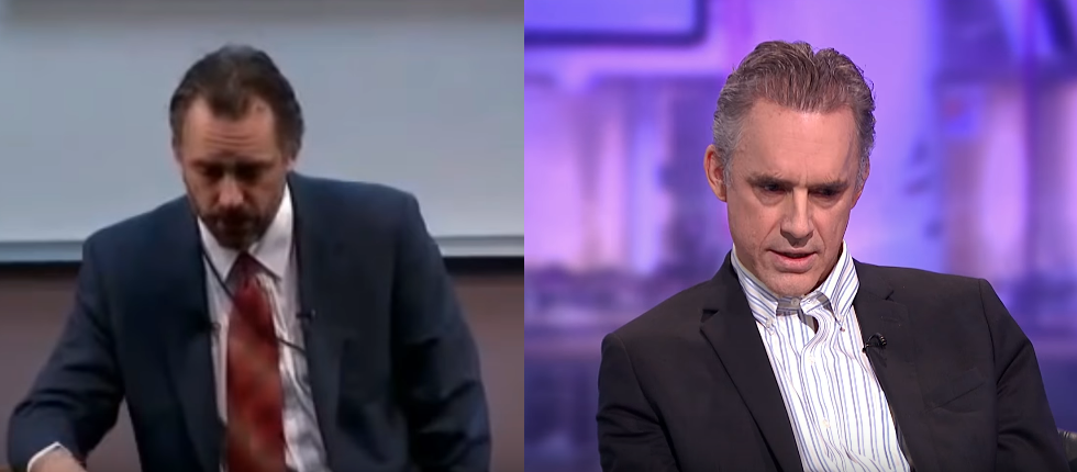 Jordan Peterson Hair Transplant before and after 2