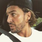 Mario Falcone Beard Transplant
